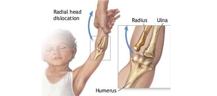 tarik tangan anak, sentap tangan anak, tulang siku lari, tulang siku, pulled elbow, tulang siku anak lari,