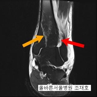 osteocondroza articulațiilor genunchiului 1 grad