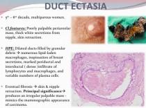 A patológiai jelentés megértése: Mellrák Atipikus ductalis hyperplasia és papilloma